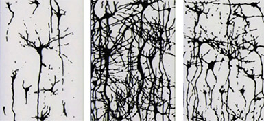 Silhouette of brain synapses at three life stages: birth (left), age 6 years (centre), and age 14 years (right). There is less synaptic complexity in the 14-year-old brain than the 6-year-old..